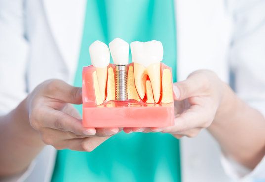 What Can Be Expected During The Implant Restoration Process